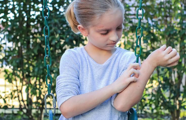 アトピー 蕁麻疹 霊障