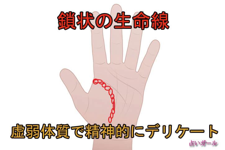 手相 生命線 鎖状生命線 占い おすすめ