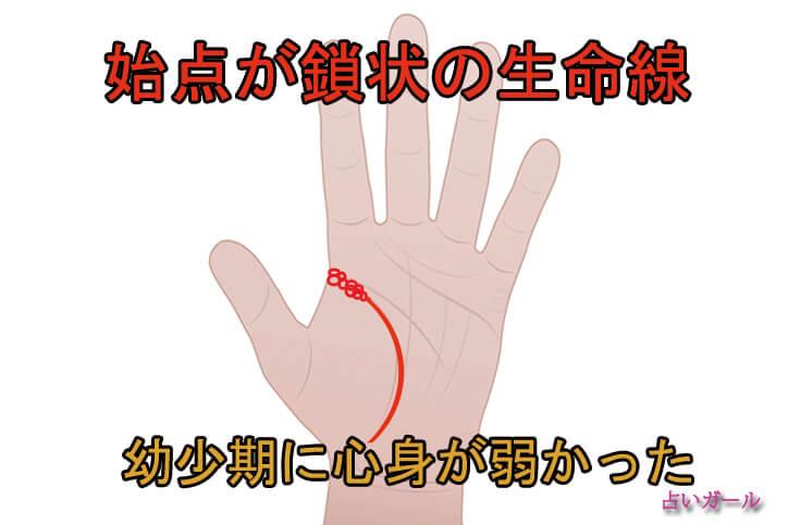 手相 生命線 始点が鎖状の生命線 占い おすすめ